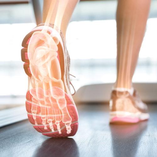 Biomekanisk fodkorrektion
